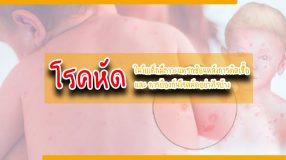 โรคหัด ในวัยเด็กมีภาวะแทรกซ้อนหลังการติดเชื้อ และการป้องกันโรคหัดอย่างไรบ้าง