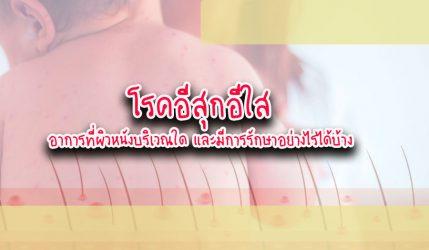 โรคอีสุกอีใส อาการที่ผิวหนังบริเวณใด และมีการรักษาอย่างไรได้บ้าง