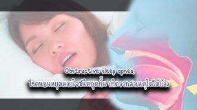 Obstructive sleep apnea โรคนอนหยุดหายใจชนิดอุดกั้น เกิดจากสาเหตุใดได้บ้าง